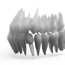Mode d'emploi : les implants dentaires