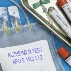 Les signes et évolutions de la maladie d'Alzheimer